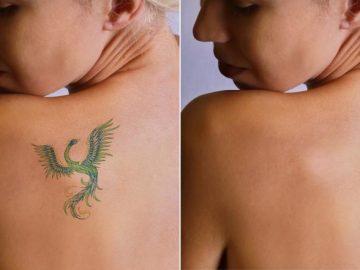 consejos de eliminacion de tatuajes